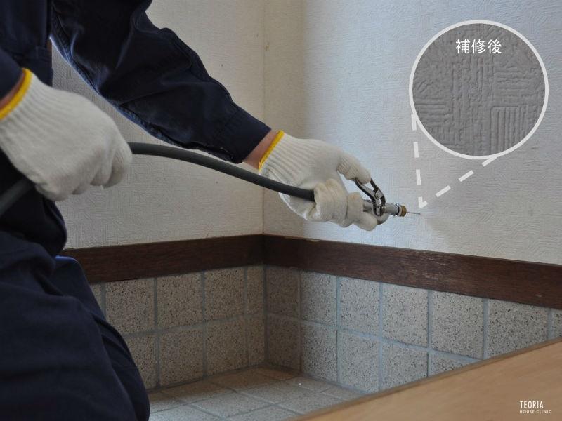 壁内への薬剤注入
